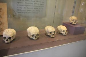 Deformed Boholano skulls